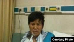 右臂被打骨折的范木根的妻子(王宇律师图片)