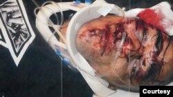 Udarali su me dok mi je lice bilo ispod vozila i mogao sam da osetim pištolj uperen u moju glavu: Aleks Landau