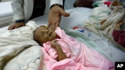 FILE - A doctor touches a malnourished child at a therapeutic feeding center in a hospital in Sanaa, Yemen, Jan. 24, 2016.