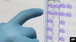 El examen de orina permite detectar el virius hasta dos semanas después de aparecer los síntomas. El examen de sangre ofrece una ventana de hasta una semana.