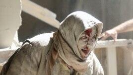 Vazhdojnë sulmet ajrore në Aleppo