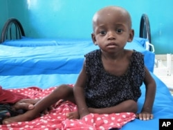 A malnourished child Bosaso in northwest Somalia, September 2010