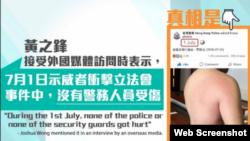 港警在脸书晒一名警员受伤图反驳黄之锋。 (香港警察脸书截图)