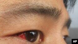 王成律师被殴打的照片