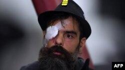 Jerome Rodrigues, salah seorang pemimpin gerakan rompi kuning yang mengalami luka di matanya dalam aksi protes, berbicara kepada media di Paris (27/1).