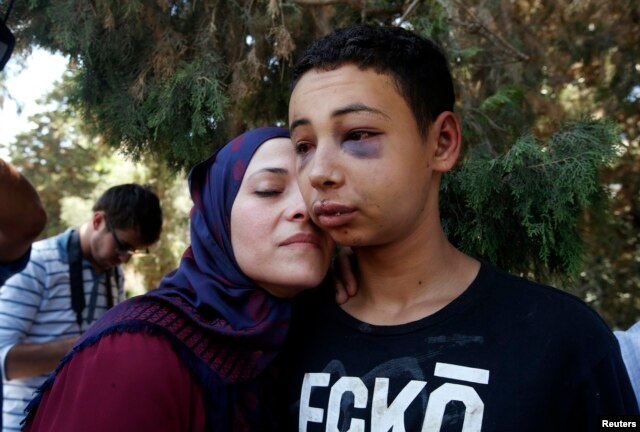 Tariq Khdeir, right, is greeted by his mother after being released from jail in Jerusalem, July 6, 2014.