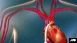 Ăn nhiều đường có nguy cơ bị bệnh tim