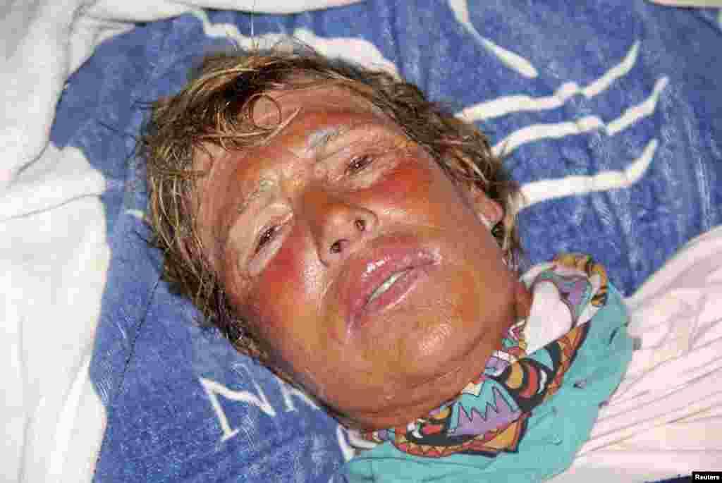 Diana Nyad descansa luego de haber sido sacada del agua por su equipo. Tan solo la noche del lunes sufrió de nueve picaduras de medusas.