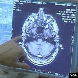 Ilmuwan meneliti pengobatan gangguan kejiwaan dengan cara menstimulasi aliran listrik lewat kawat elektroda tipis yang ditanam di otak.