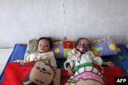 Besin yetersizliğinden hasta çocuklar