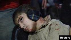 An injured boy waits for treatment in a field hospital after what activists said was an airstrike by forces loyal to Syria's President Bashar al-Assad in the Duma neighborhood of Damascus, Dec. 23, 2014.