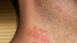 ေရယုန္ႀကီး ေရာဂါ (herpes-zoster-or-shingles)
