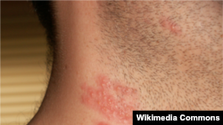 Bệnh zona (herpes-zoster, shingles)