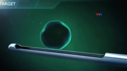 Yeni texnologiya: Ultrasəs xərçəng şişlərini məhv edir Video