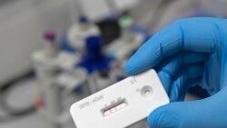 科学家:不能对抗体测试期望值过高