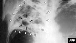Hình quang tuyến phổi bệnh nhân bị lao