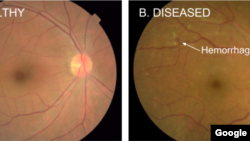 Google deep learning methods are used to detect diabetic eye disease. The image on the left is a healthy retina, while the one on the right shows signs of diabetic disease. (Google AI)