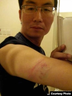 北京维权律师李方平胳膊上有一大片淤青 (图片来自李方平的微博)