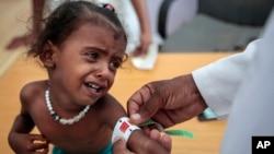 صحت مرکز، یمن
