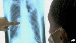 ນາຍແພດເບິ່ງພາບ x-ray ຂອງຄົນປ່ວຍເປັນໂຣກ TB ຫລືປອດແຫ້ງ