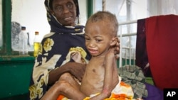 Abdulahi Musa, a malnourished five-year-old boy, sits on his mother's lap at Banadir hospital in Mogadishu, Somalia, May 20, 2014.