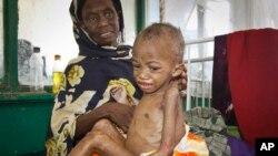 La mayoría de estos niños, viven en países subdesarrollados.