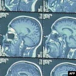U slučaju pojave Alchajmera ili demencije, mozak ljudi koji poznaju više jezika bolje funkcioniše od onih koji govore samo jednim