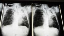 Tuberculose no namibe - 1:39