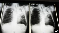 Novo tipo de tuberculose resiste a todos os medicamentos