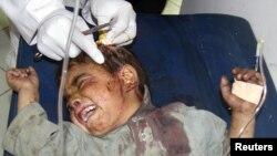 Bombalı intihar saldırısında yaralanan bir Afgan çocuk hastanede tedavi görürken