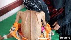Fatima yang berusia 12 tahun hanya memiliki berat 10kg ketika dibawa ke klinik.