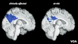 Alzheimer's researchers switch focus to prevention.