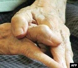 Parkinsonizm - xronik kasallik. Bosh miya zararlanganda vujudga keladi.
