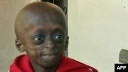 Progeria, një gjendje e rrallë gjenetike që shkakton plakje të përshpejtuar