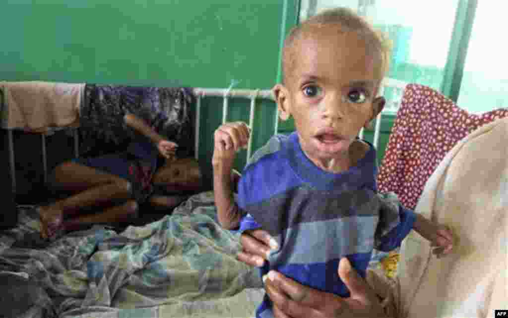 A child from southern Somalia, is treated for malnourishment in Banadir hospital in Mogadishu, Somalia, Friday, Aug. 5, 2011. The United Nations predicts famine will probably spread to all of southern Somalia within a month and force tens of thousands mo