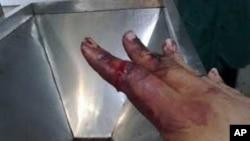 地球专家被砍伤的手指