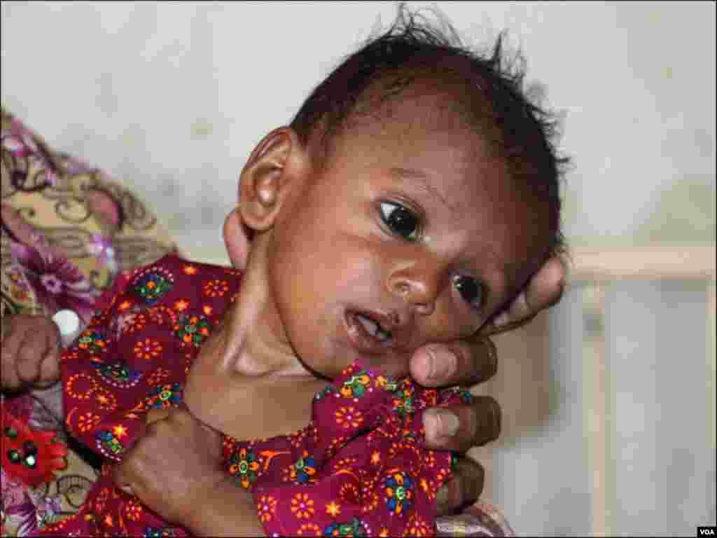 اکثر بچے غذائیت کی کمی کا شکار دکھائی دیتے ہیں۔