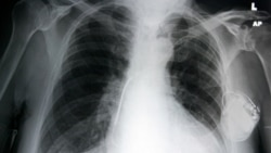 Reused Pacemakers May Aid Heart Care in Developing World