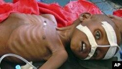 Umwana akitswe n'indwara zo kudafungura mu kigo co kwitaho abana ca Unicef, muri Somaliya