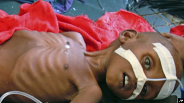 A malnourished child from southern Somalia lies in Banadir hospital in Mogadishu, July 13, 2011