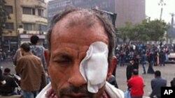 مصر میں جھڑپیں تیسرے روز بھی جاری، 33 افراد ہلاک