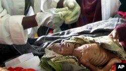 ພາບຖ່າຍໃນວັນພຸດ ທີ 10 ສິງຫາ 2011 ສະແດງໃຫ້ເຫັນວ່າ ທ້າວ Ibrahim Abukar Abdi ອາຍຸສາມປີ ໄດ້ກິນອາຫານໂດຍການສົ່ງຜ່ານທໍ່ສົ່ງອາຫານຢູ່ໂຮງໝໍ Banadir ໃນນະຄອນ Mogadishu ຂອງໂຊມາເລຍ. ທ່ານໝໍເວົ້າວ່າ ລາວເປັນໂຣກຂາດອາຫານ ແລະໂຣກໝາກສຸກຢ່າງໜັກ.