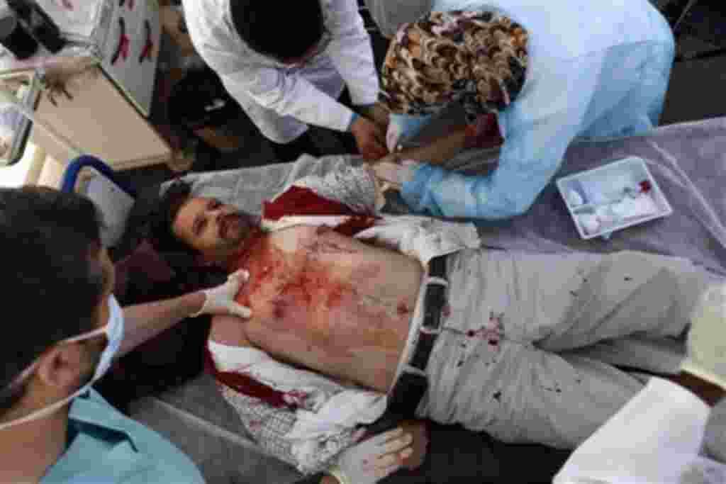 La ciudad del oeste libio de Misrata estuvo sometida a fuertes bombardeos de las fuerzas leales a Moammar el Gadhafi.