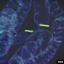 Kanker usus besar dapat dideteksi dari tumbuhnya 'polip'.