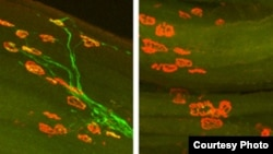 Images of axon regeneration in mice two weeks after injury to the hind leg's sciatic nerve. On the left, axons (green) of a normal mouse have regrown to their targets (red) in the muscle. On the right, a mouse lacking DLK shows no axons have regenerated,