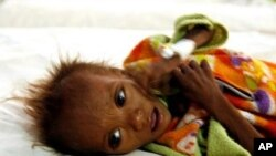 Malnourished Indian child Nitesh rests on his bed at the Kalyani Nutrition Rehabilitation Centre (NRC) in Shivpuri district some 113 kms from Gwalior (File Photo)