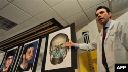 Lekar pokazuje rekonstrukcija lica Ričarda Norisa