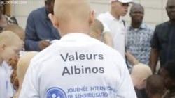 Reportage de Ginette Fleure Adandé sur l'albinisme au Bénin