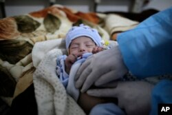 FILE - A doctor checks two-month-old Mujahed Ali, suffering from a cholera infection, at Al-Sabeen hospital, in Sanaa, Yemen, Mar. 30, 2019.