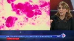 تازهترین نتایج تحقیق برای شناسایی ژن درمانی سرطان خون حاد
